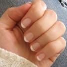 Remover manchas das unhas