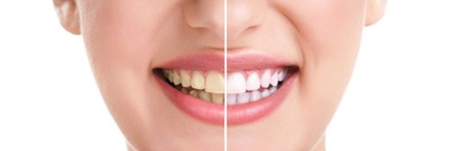 branquear-os-dentes-capa