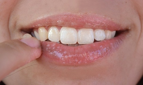 esfoliante de lábios 5
