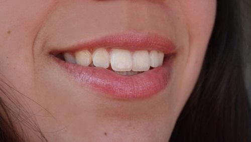 esfoliante de lábios capa